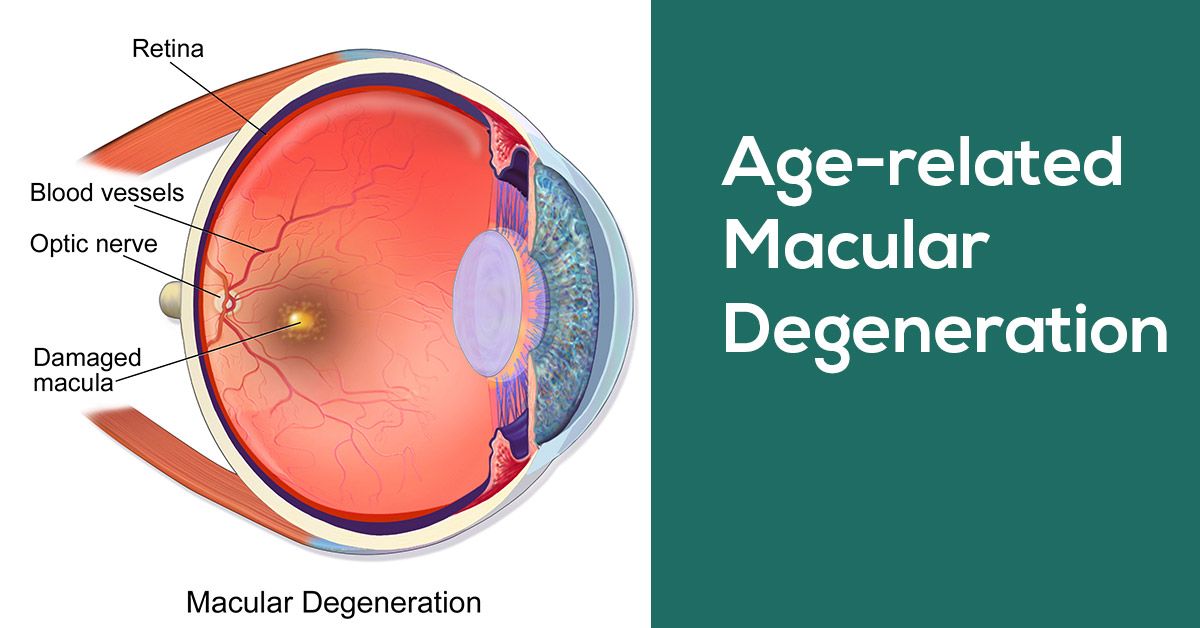 Premier Medical, Mobile Alabama - Age-Related Macular Degeneration