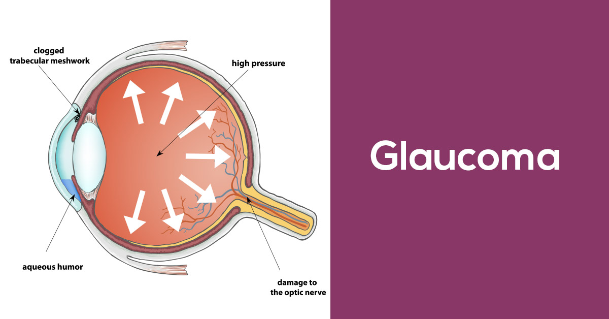 Premier Medical, Mobile Alabama - Glaucoma