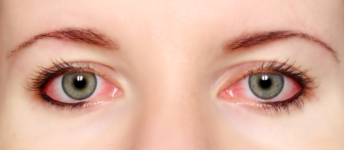 photo of woman's irritated, red eyes